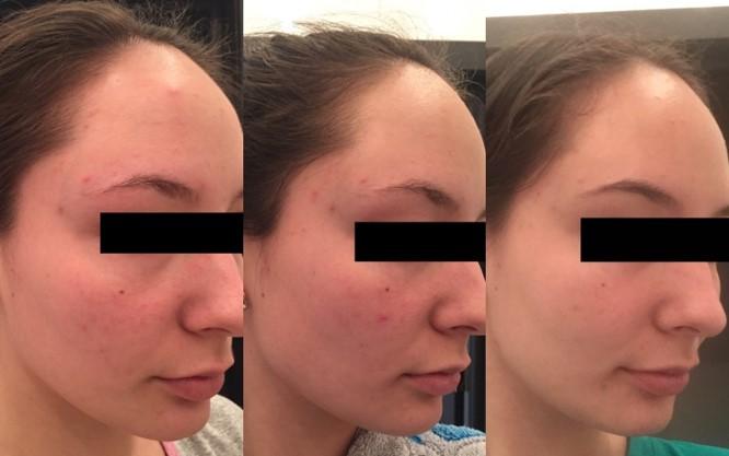 dermanutrix-acne-akne-ravi-toidulisand